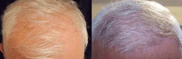 hajbeültetés akció